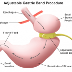 gastric band, personal nutritionist, personal trainer and nutritionist near me, Best Holistic Nutritionist Los Angeles | Shawn Phillips Personal Trainer