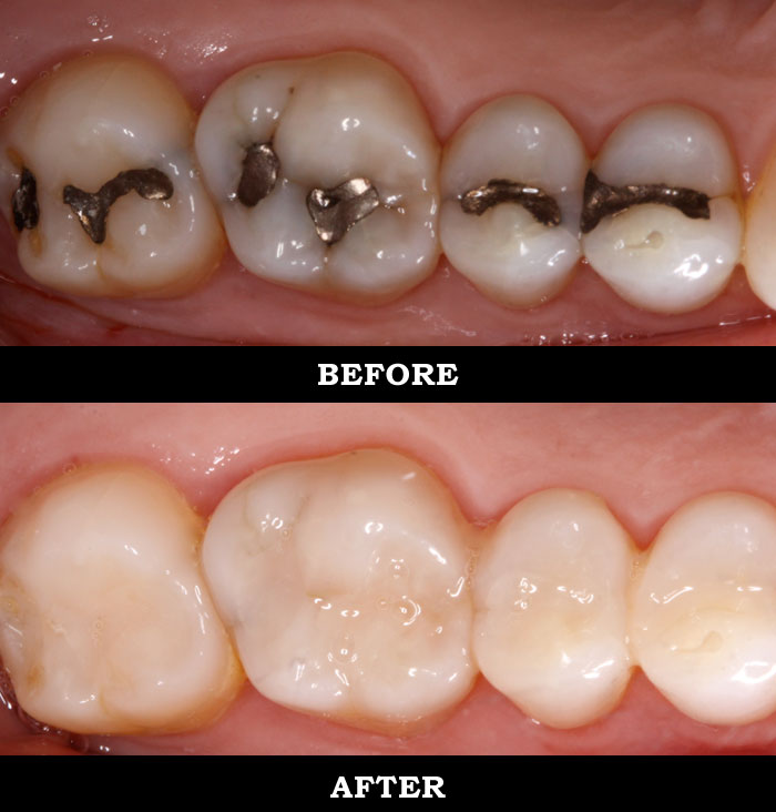 The Risk Of Silver Or Metal Dental Fillings